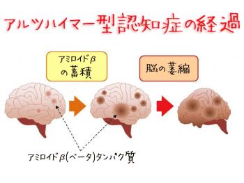 認知症の原因物質-歯周病によって蓄積する仕組みを解明