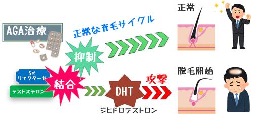 ジヒドロテストスにテロン(DHT)が脱毛促進