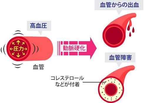 継続した血管への圧力は血管を損傷、破裂する危険性があります。