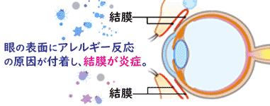 花粉症の目の痒み、炎症にはどう対処する?