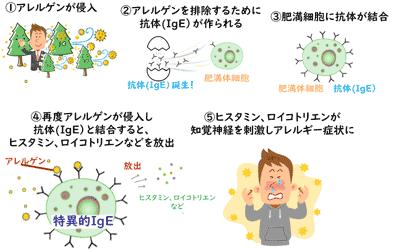 ヒスタミン等が知覚神経を刺激しアレルギー症状に