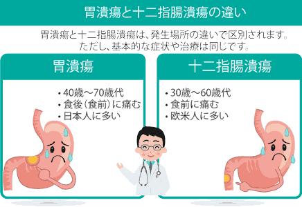 胃潰瘍と十二指腸潰瘍の疑い
