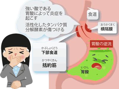 逆流性食道炎は強い酸によって炎症を起こす