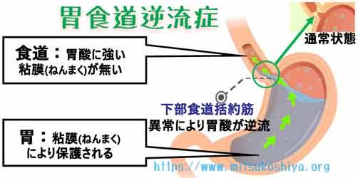 胃酸が逆流する(胃食道逆流症)症状