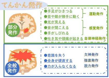 てんかん発作は部分と全般発作でそれぞれ症状がことなる