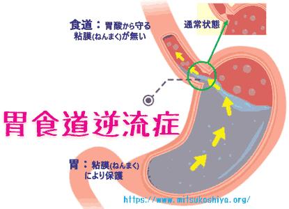 ラベマック(ラベプラゾールナトリウム)は胃食道逆流症にも有効です。